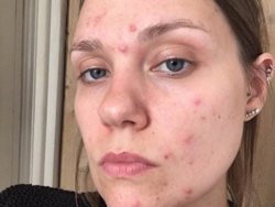Acne problem image-rootcure homeopathy