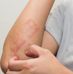 Eczema-img- rootcure homeopathy
