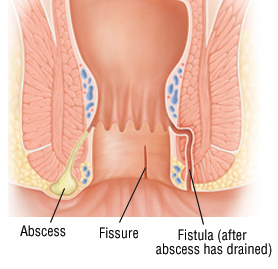 Fissure in ano problem image - rootcure homeopathy
