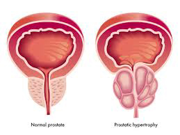 Prostatomegaly Image by rootcure homeopathy