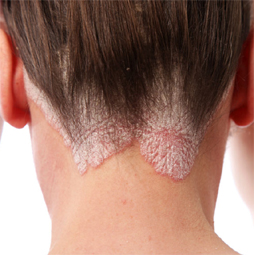 Psoriasis image-rootcure homeopathy