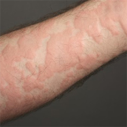 Urticaria image-rootcure homeopathy