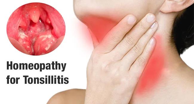 Tonsillitis homeopathic medicine
