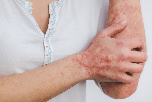 homeopathic psoriasis treatment